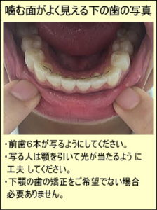 噛む面がよく見える下の歯の写真